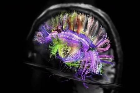 最新研究:大腦活動之複雜令人無法想像
