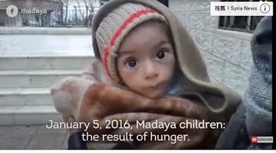 面臨餓死危機的幼童。