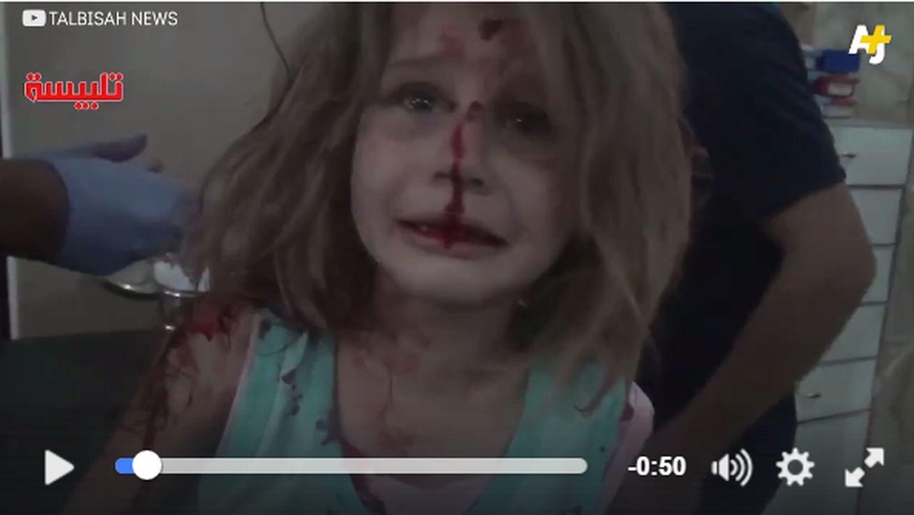 又一令人心碎影像 敘「血面女童」哭尋爸爸