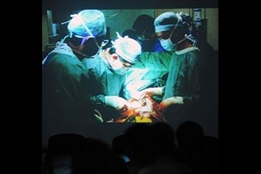 梵蒂岡峰會 移植專家:強摘器官仍在繼續