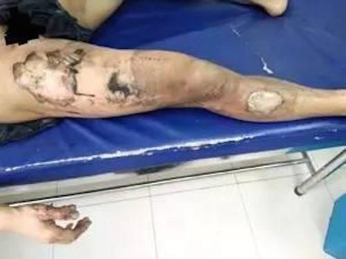 充電寶在褲袋中爆炸 杭州男子被燒傷