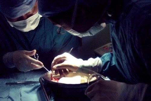 國際醫生組織:中共器官移植改革是謊言