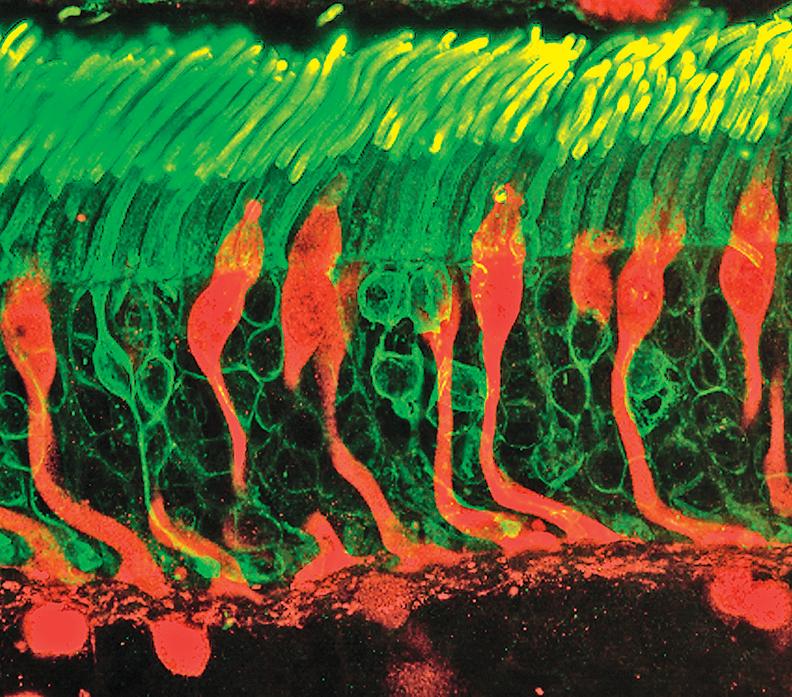 人體處處有「眼睛」 新發現:細胞能感光
