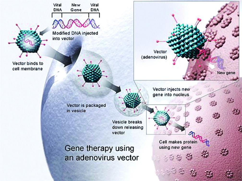 治療多發性硬化症 基因療法取得進展