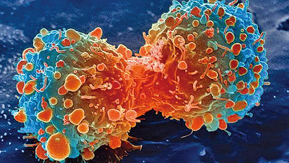 新研究:糖刺激癌細胞生長